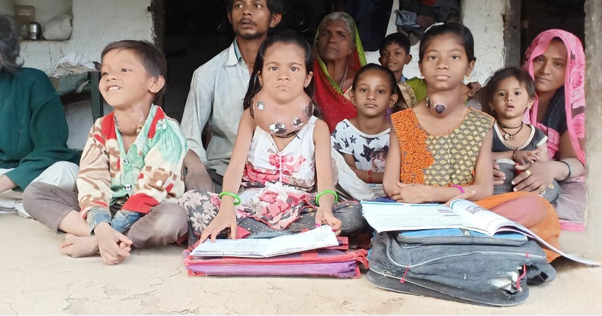 http://meranews.in/backend/main_imgs/goiter-disease_abad-civil-hospital-to-treat-3-amreli-school-children-suffering-from-goitre-under-the-school-health-programme_0.jpg